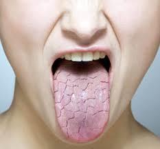 دلایل و درمان خشکی دهان