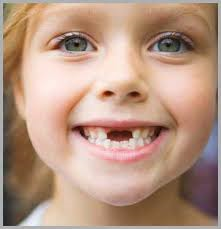 آيا دندانهاي شيري مهماند؟