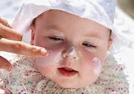پوست نوزاد را دریابید !