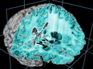 ارايه دقيق ترين تصوير سه بعدی از مغز انسان