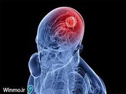 علائمی که خبر از تومور مغزی می دهند