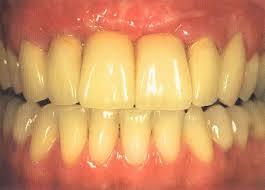 پیشگیری از زرد شدن دندان ها